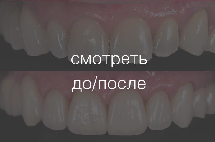 Коронки и виниры фронтальной группы зубов